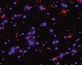 A ctivation of astrocytes and microglia in rat cer