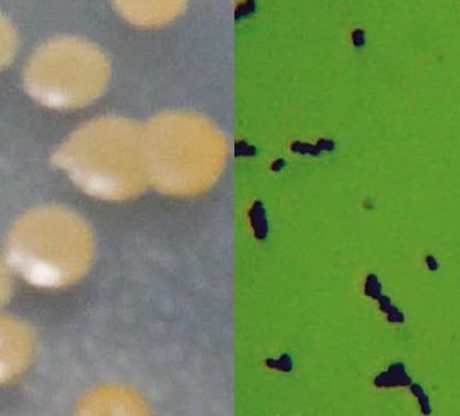 Photograph of colony on LB medium and microphologi