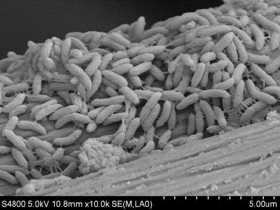 SEM observations of the bacteria growing on ...