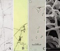 Mycelium morphology of CAU521 on PYE
